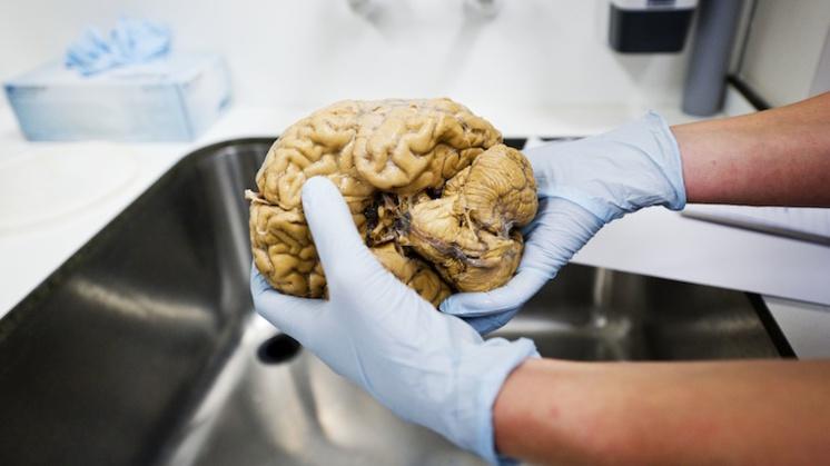 Oproep: doneer hersenen na overlijden