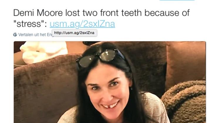Feit of fictie: Tanden verliezen door stress