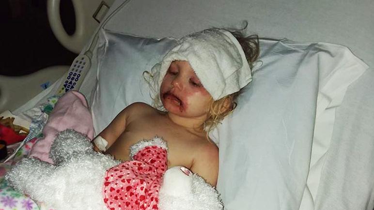 Allergische reacties door kindermake-up